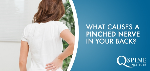 What Causes A Pinched Nerve in Your Back?